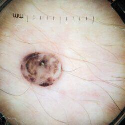 alunite-derma360-clinica-dermatologica-101