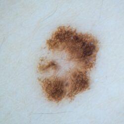 alunite-derma360-clinica-dermatologica-103