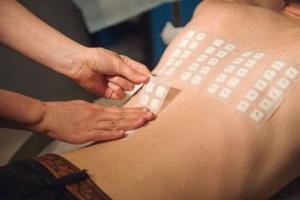 test alergologic tip patch 3