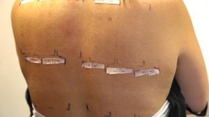 test alergologic tip patch 2