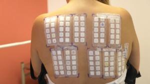 test alergologic tip patch 1